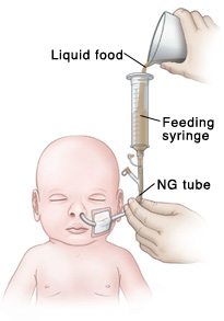 Bolus feeding using a syringe.  The feeding syringe is filled with liquid food from a measuring cup.  