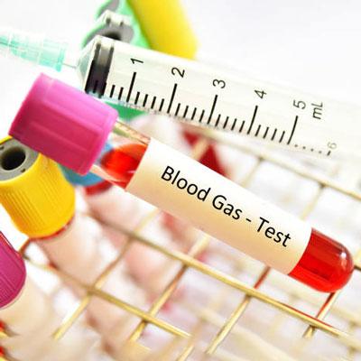 تفسیر گازهای خون شریانی
