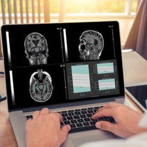اپلیکیشن سیستم مغز و اعصاب
