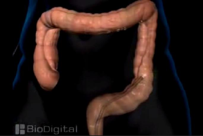 irannurse-ir_144_colonoscopy