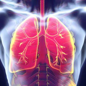 آمبولی ریه