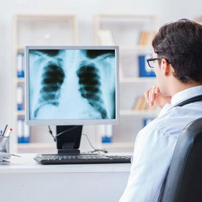 رادیوگرافی قفسه سینه