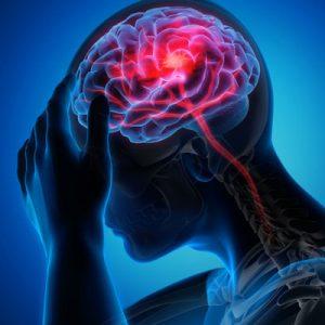 بیماری های مغز و اعصاب